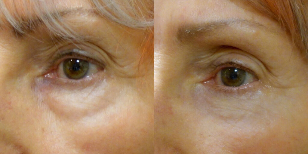 Lower Eyelid Patient-1