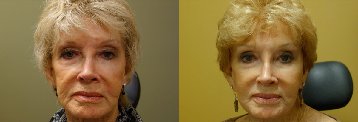 Injectable Filler Patient 2 Before After Other Other Front Angle Dr. Joseph Inland Empire