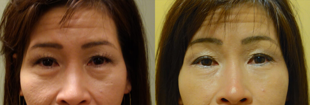 Injectable Filler Patient-3