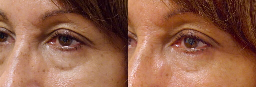 Injectable Filler Patient-4