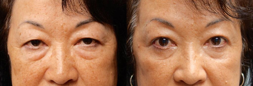 Asian Eyelid Patient-1