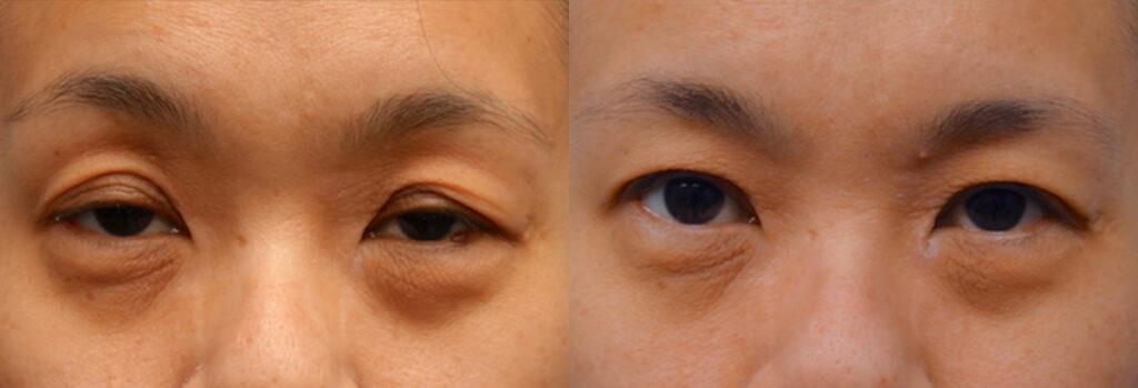 Asian Eyelid Patient-3