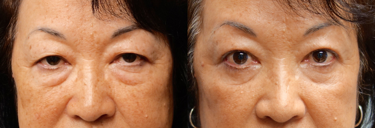 Upper Blepharoplasty Before and After Photo Gallery Patient 1 Front Angle Infocus Inland Empire