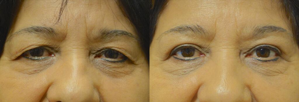 Upper Eyelid Patient-2