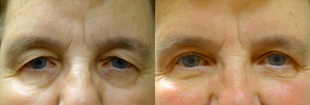 Upper Eyelid Patient-5