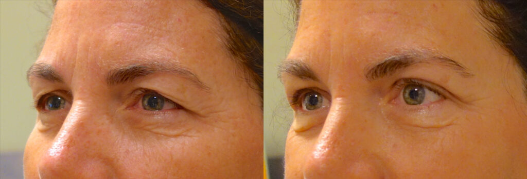 Upper Eyelid Patient-6