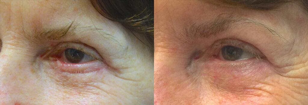 Eyelid Patient-4