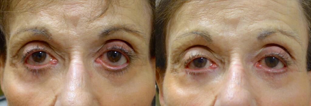 Eyelid Patient-1