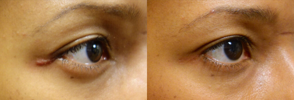 Eyelid Patient-3