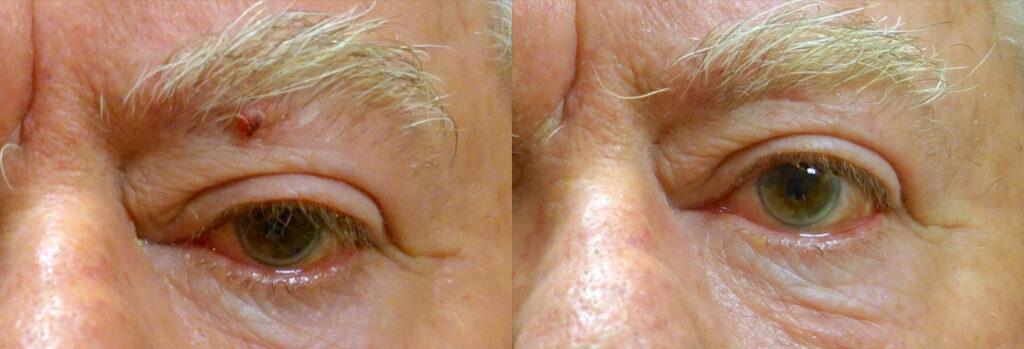Eyelid Skin Cancer Patient-1