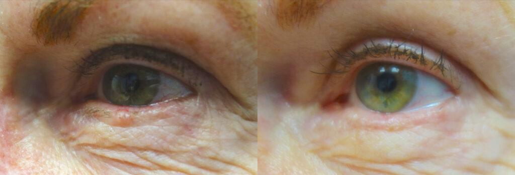 Eyelid Skin Cancer Patient-2