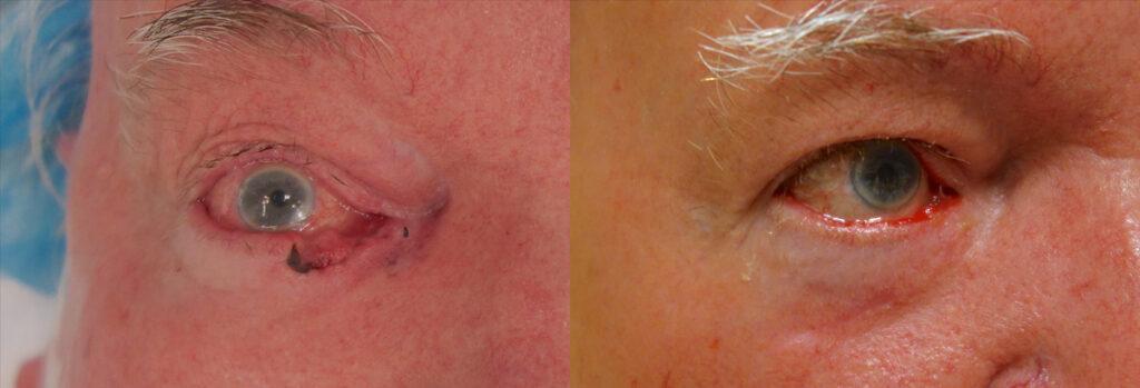 Eyelid Skin Cancer Patient-4