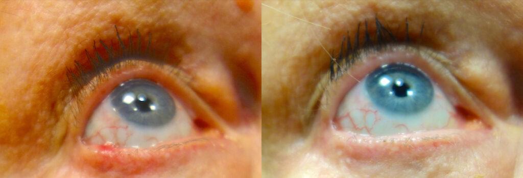 Eyelid Skin Cancer Patient-5