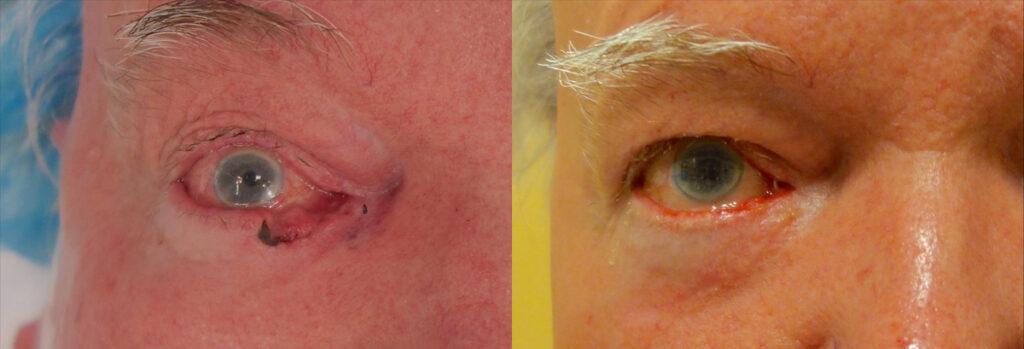 Eyelid Skin Cancer Patient-7