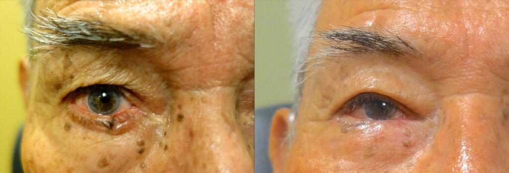Eyelid Skin Cancer Patient-8