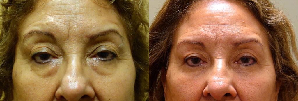 Lower Eyelid Patient-4