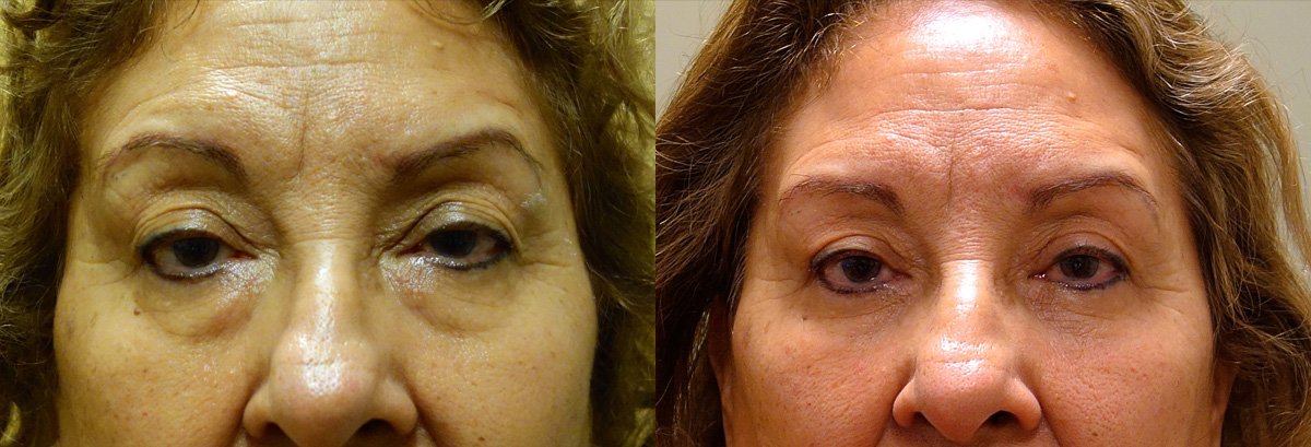 Lower Blepharoplasty Before and After Patient 5 Dr. Joseph Infocus Inland Empire