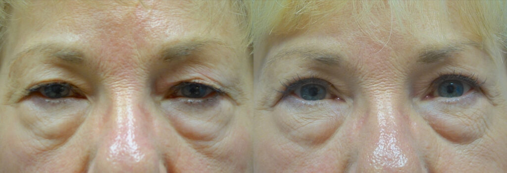 Upper Eyelid Patient-9