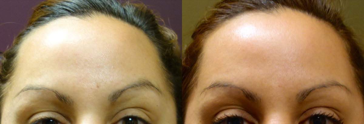 Botox Before and After Photo Gallery Patient 1 Front Angle Dr. Joseph Infocus Inland Empire