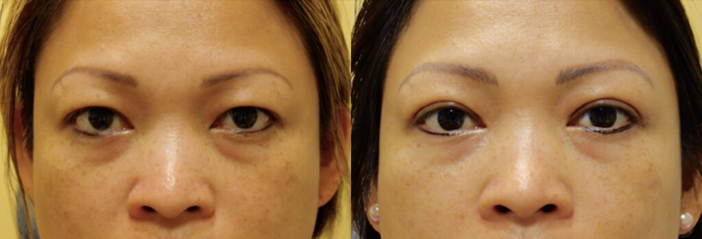 Asian Eyelid Patient-2