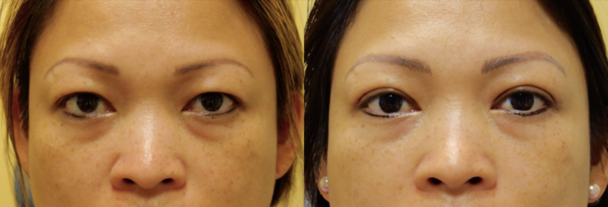 Asian Blepharoplasty Before and After Patient 2 Front Angle Dr. Joseph Infocus Inland Empire