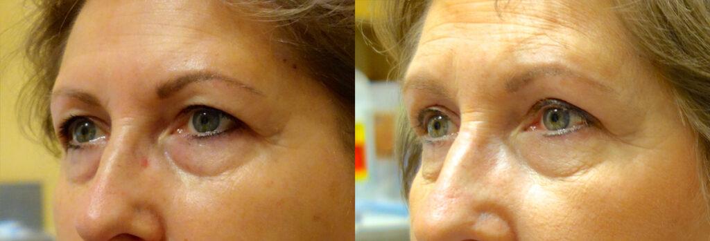 Upper Eyelid Patient-3
