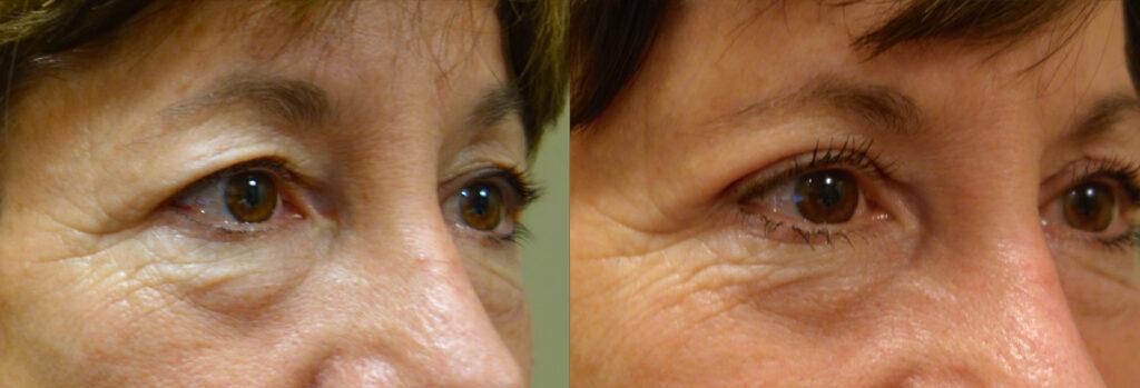 Upper Eyelid Patient-7