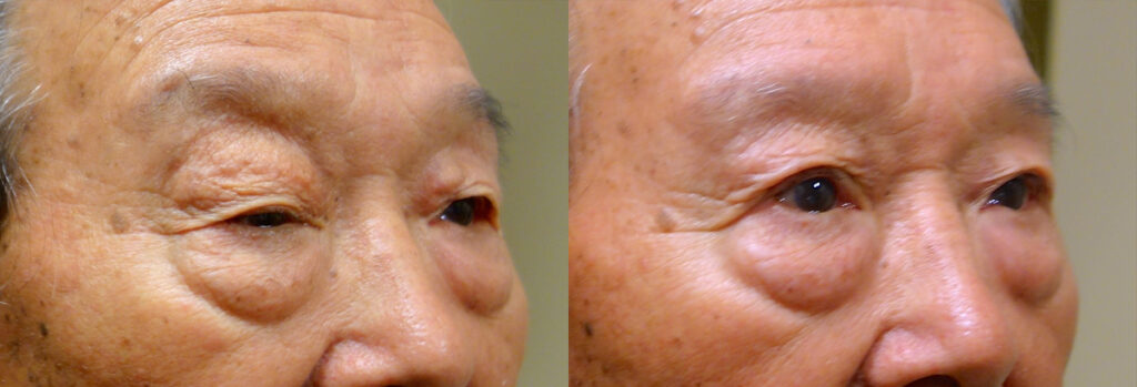 Eyelid surgery revision Patient