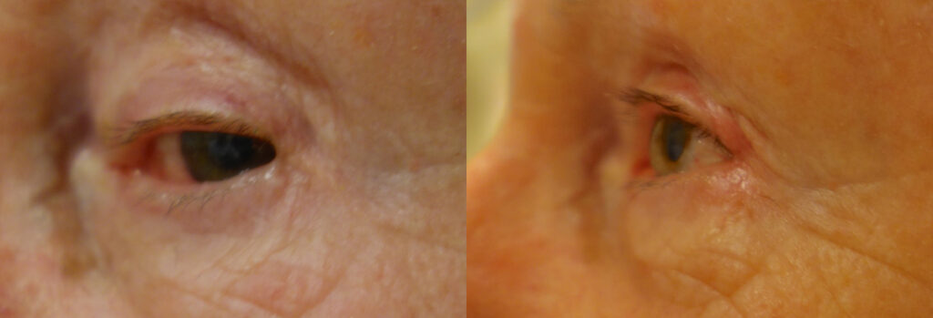 Eyelid Patient-2