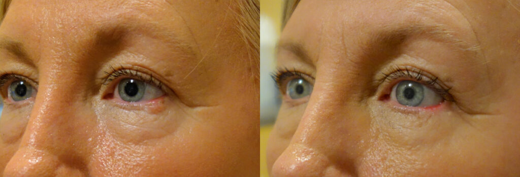 Eyelid Skin Cancer Patient-3