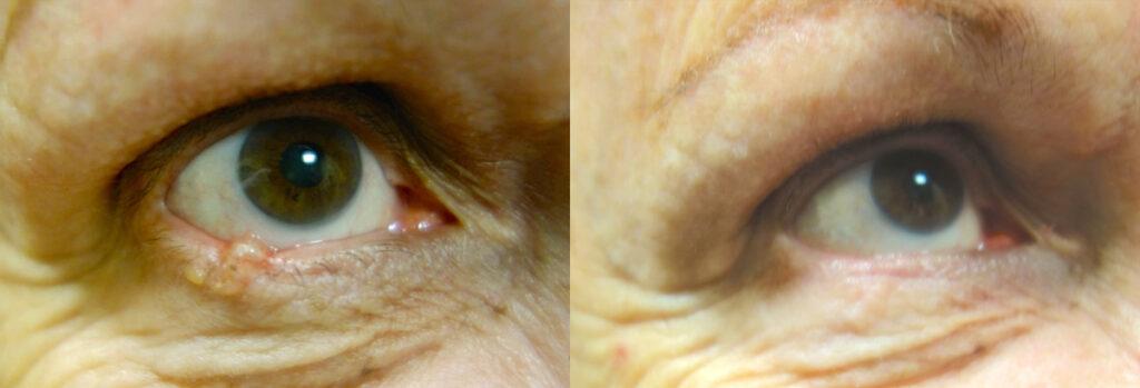 Eyelid Skin Cancer Patient-6