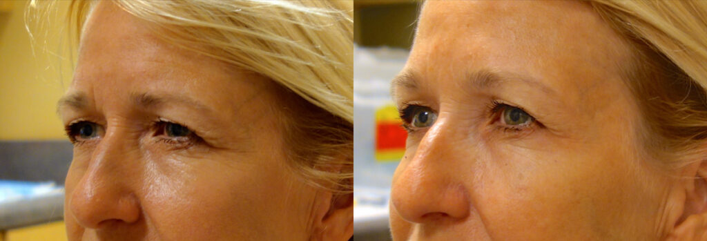 Botox Patient-2