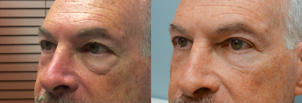 Lower Eyelid Patient-6