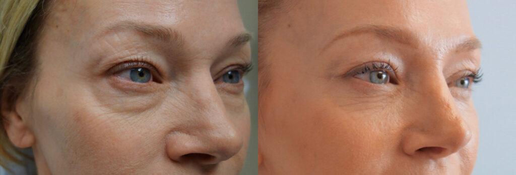 Lower Eyelid Patient-2