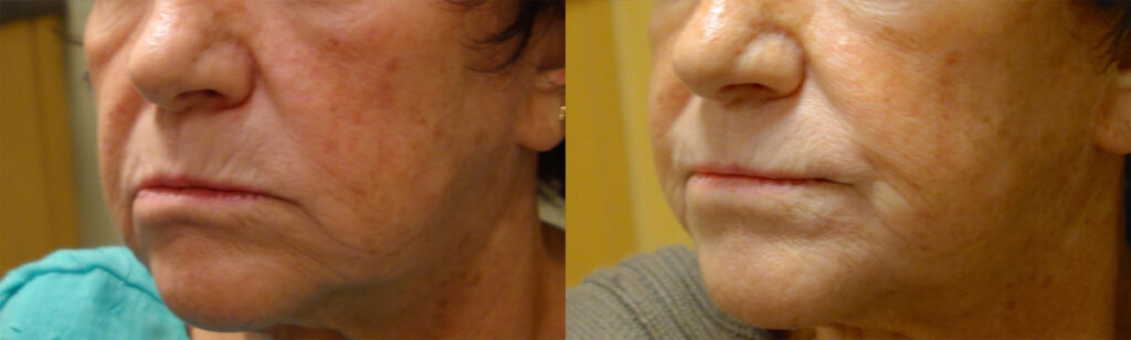 Injectable Filler Patient-1