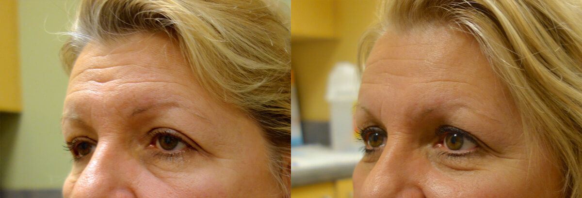Brow Lift Before and After Patient 1 Dr. Joseph Infocus Inland Empire