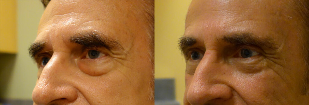 Lower Eyelid Patient-5