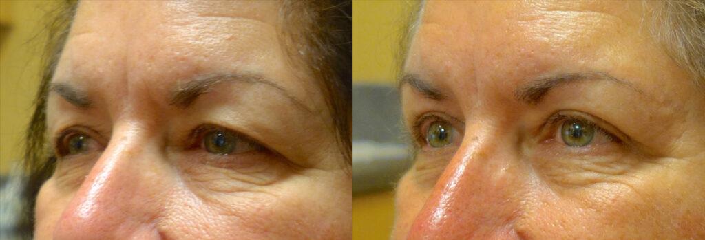 Upper Eyelid Patient-4