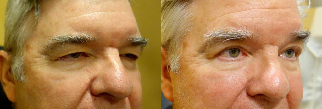Upper Eyelid Patient-8