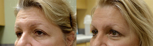 Before and After Patient Side Angle Upper Eyelid