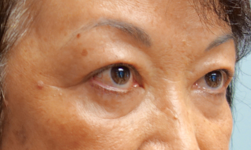 asian blepheroplasty patient side view