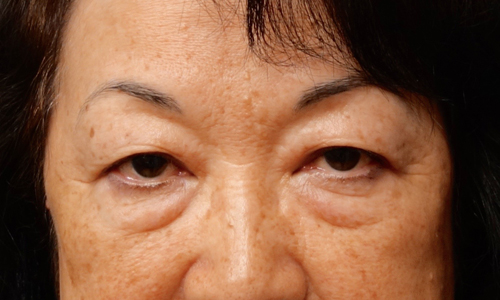 asian blepheroplasty patient front view