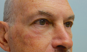 Lower eyelid blepheroplasty patient after pic side view