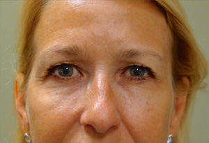 Botox After Photo Gallery Patient 2 Front Angle Dr. Joseph Infocus Inland Empire