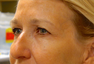 Botox After Photo Gallery Patient 2 Side Angle Dr. Joseph Infocus Inland Empire