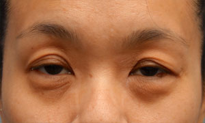 asian eyelid surgery patient front view