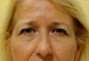 Botox Before Photo Gallery Patient 2 Front Angle Dr. Joseph Infocus Inland Empire