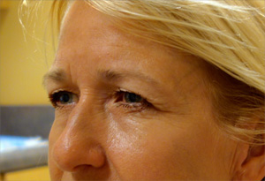 Botox Before Photo Gallery Patient 2 Side Angle Dr. Joseph Infocus Inland Empire