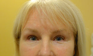 brow lift patient front view