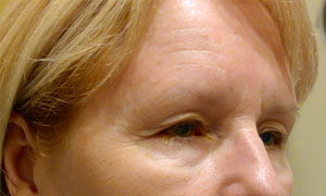 brow lift patient side view